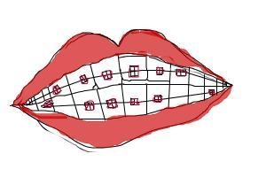 How to draw braces